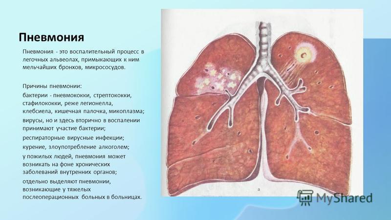 Пневмония Пневмония - это воспалительный процесс в легочных альвеолах, примыкающих к ним мельчайших бронхов, микрососудов. Причины пневмонии: бактерии - пневмококки, стрептококки, стафилококки, реже легионелла, клебсиелла, кишечная палочка, микоплазм