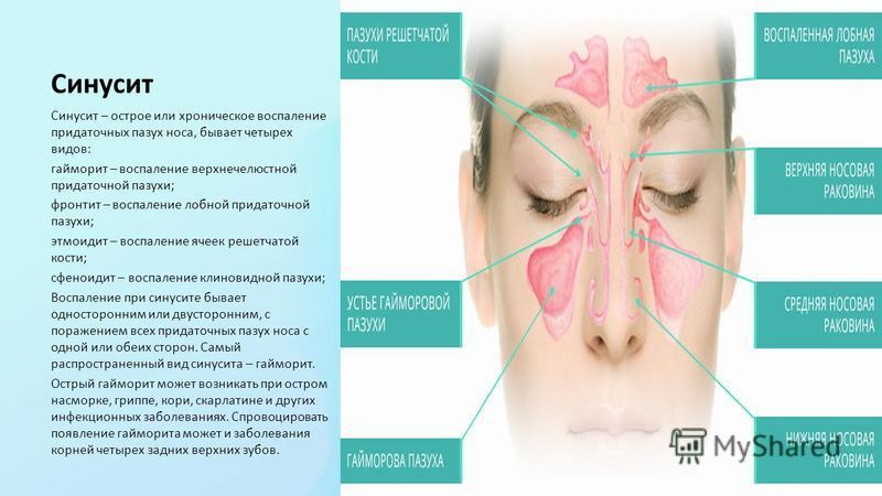 Синусит Синусит – острое или хроническое воспаление придаточных пазух носа, бывает четырех видов: гайморит – воспаление верхнечелюстной придаточной пазухи; фронтит – воспаление лобной придаточной пазухи; этмоидит – воспаление ячеек решетчатой кости;