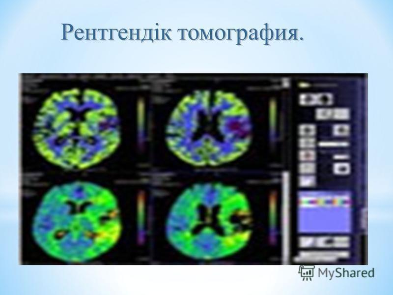 Рентгендік томография.