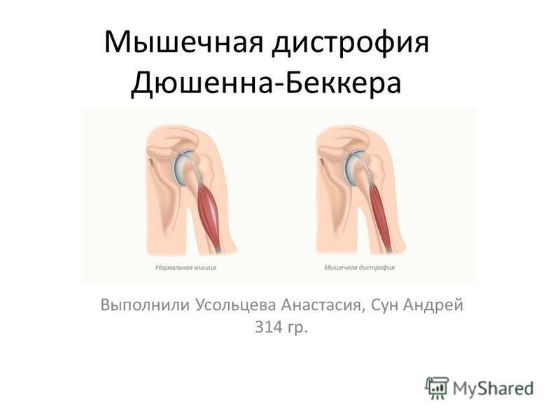 Мышечная дистрофия Дюшенна-Беккера Выполнили Усольцева Анастасия, Сун Андрей 314 гр.