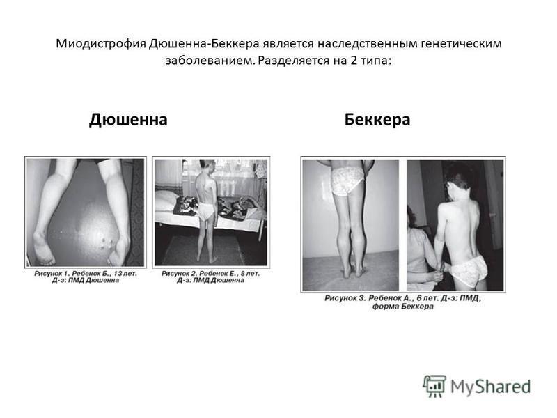 Миодистрофия Дюшенна-Беккера является наследственным генетическим заболеванием. Разделяется на 2 типа: Дюшенна Беккера