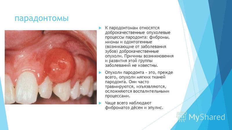парадонтомы К пародонтомам относятся доброкачественные опухолевые процессы пародонта: фибромы, миомы и одонтогенные (возникающие от заболевания зубов) доброкачественные опухоли. Причины возникновения и развития этой группы заболеваний не известны. Оп