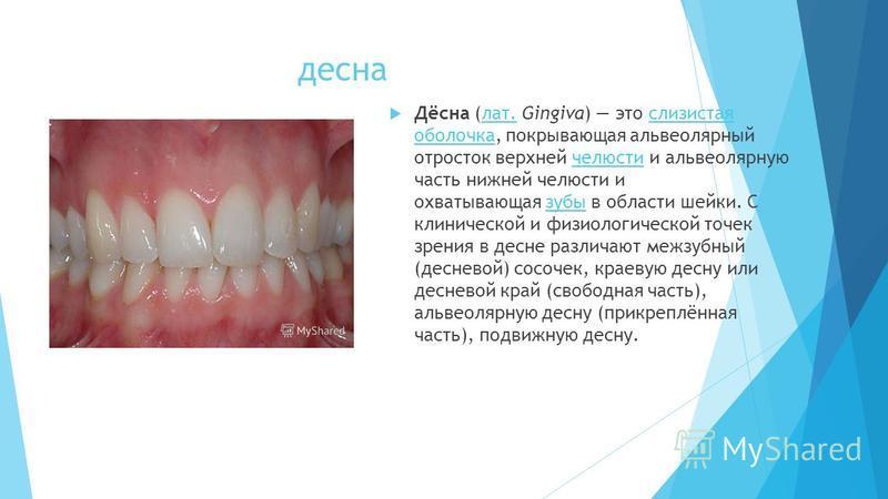 десна Дёсна (лат. Gingiva) это слизистая оболочка, покрывающая альвеолярный отросток верхней челюсти и альвеолярную часть нижней челюсти и охватывающая зубы в области шейки. С клинической и физиологической точек зрения в десне различают межзубный (де