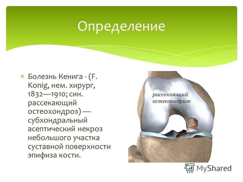 Определение Болезнь Кенига - (F. Konig, нем. хирург, 18321910; сын. рассекающий остеохондроз) субхондральный асептический некроз небольшого участка суставной поверхности эпифиза кости.