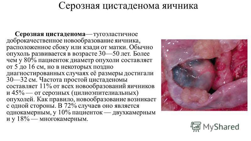 Серозная цистаденома яичника Серозная цистаденома туго эластичное доброкачественное новообразование яичника, расположенное сбоку или кзади от матки. Обычно опухоль развивается в возрасте 3050 лет. Более чем у 80% пациенток диаметр опухоли составляет