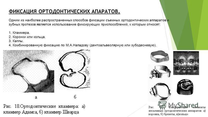 ФИКСАЦИЯ ОРТОДОНТИЧЕСКИХ АПАРАТОВ. Одним из наиболее распространенных способов фиксации съемных ортодонтических аппаратов и зубных протезов является использование фиксирующих приспособлений, к которым относят: 1. Кламмера. 2. Коронки или кольца. 3. К