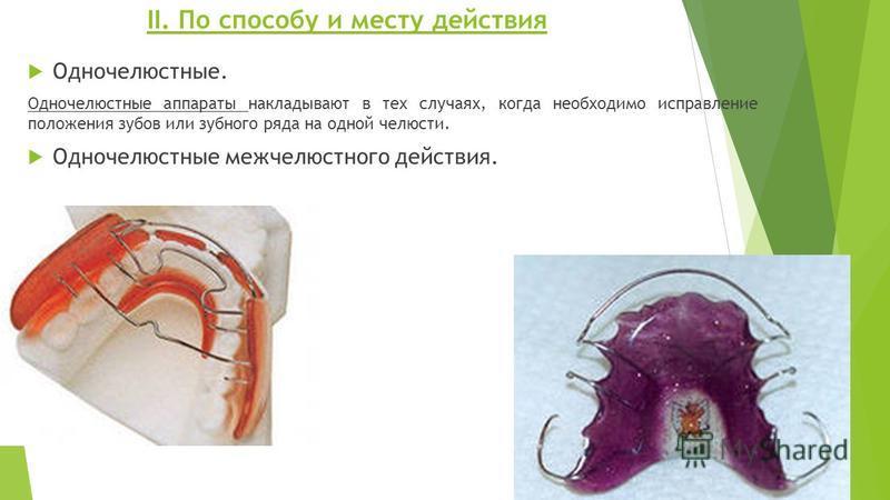 ІІ. По способу и месту действия Одночелюстные. Одночелюстные аппараты накладывают в тех случаях, когда необходимо исправление положения зубов или зубного ряда на одной челюсти. Одночелюстные межчелюстного действия.