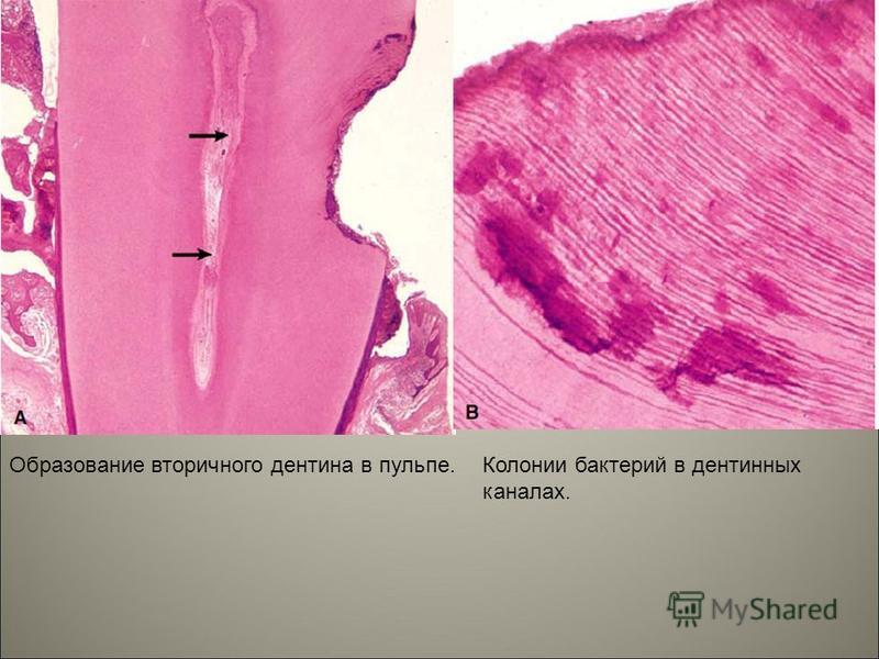 Образование вторичного дентина в пульпе.Колонии бактерий в дентинных каналах.