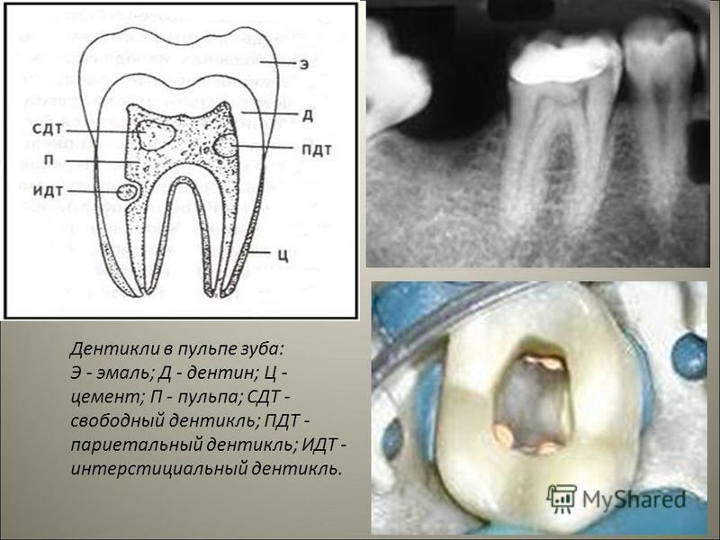 Дентикли в пульпе зуба: Э - эмаль; Д - дентин; Ц - цемент; П - пульпа; СДТ - свободный дентикль; ПДТ - париетальный дентикль; ИДТ - интерстициальный дентикль.