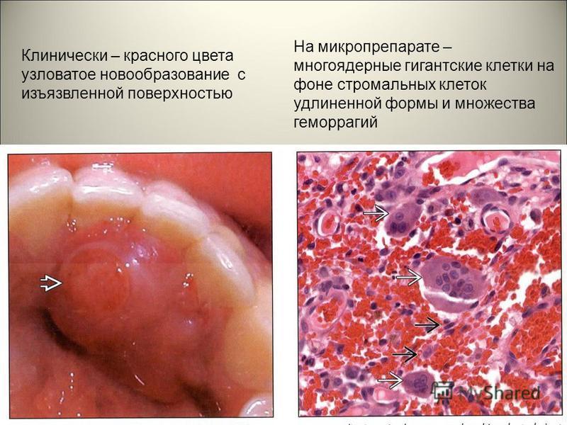 Клинически – красного цвета узловатое новообразование с изъязвленной поверхностью На микропрепарате – многоядерные гигантские клетки на фоне стромальных клеток удлиненной формы и множества геморрагий