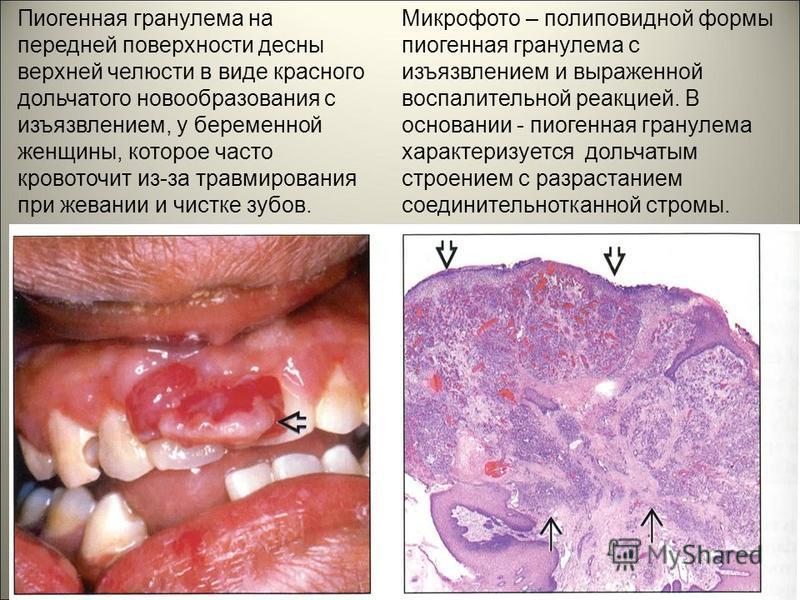 Пиогенная гранулема на передней поверхности десны верхней челюсти в виде красного дольчатого новообразования с изъязвлением, у беременной женщины, которое часто кровоточит из-за травмирования при жевании и чистке зубов. Микрофото – полиповидной формы