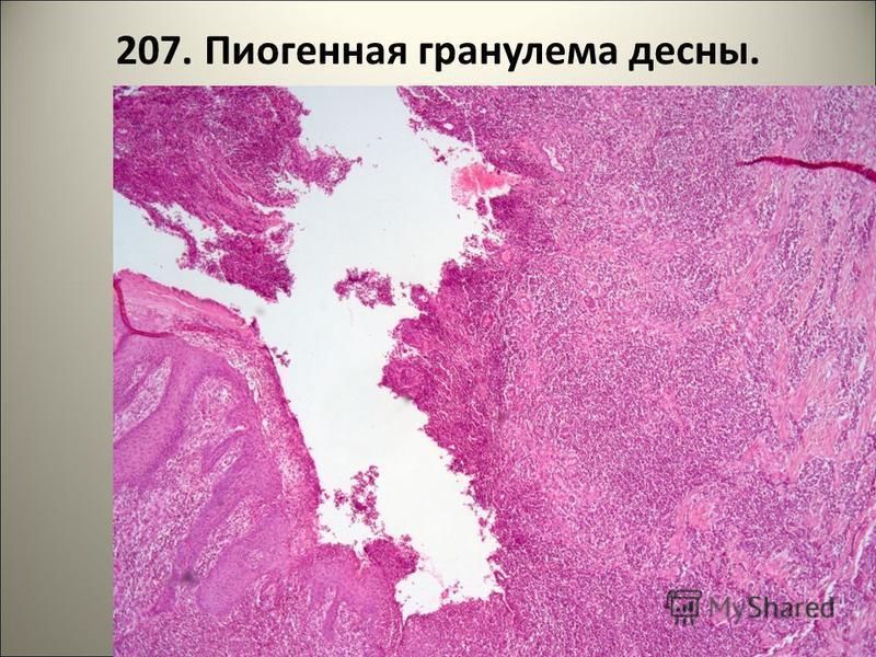 207. Пиогенная гранулема десны.