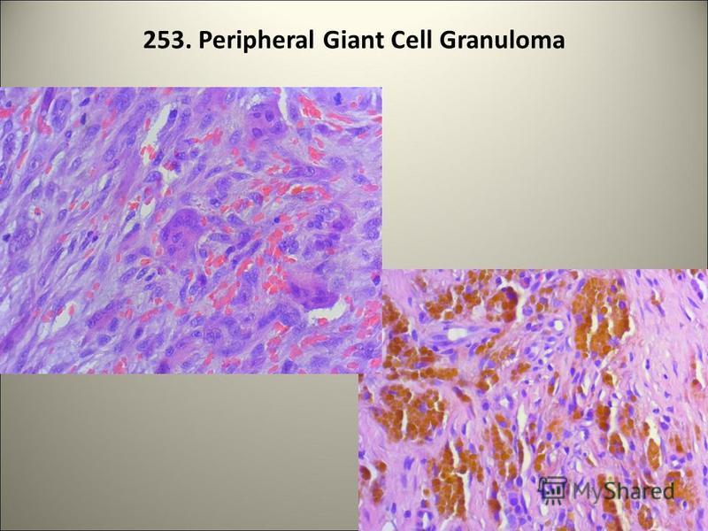 253. Peripheral Giant Cell Granuloma 92