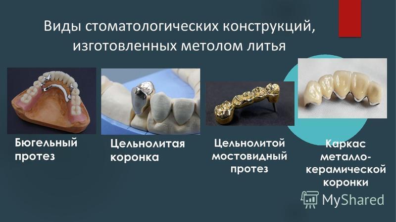 Виды стоматологических конструкций, изготовленных метолом литья Бюгельный протез Цельнолитая коронка Цельнолитой мостовидный протез Каркас металлокерамической коронки