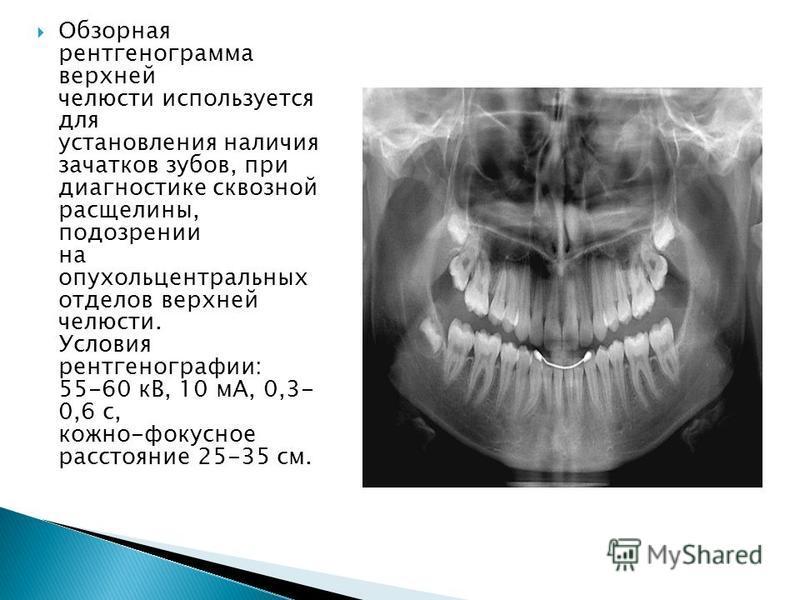 Обзорная рентгенограмма верхней челюсти используется для установления наличия зачатков зубов, при диагностике сквозной расщелины, подозрении на опухоль центральных отделов верхней челюсти. Условия рентгенографии: 55-60 кВ, 10 мА, 0,3- 0,6 с, кожно-фо