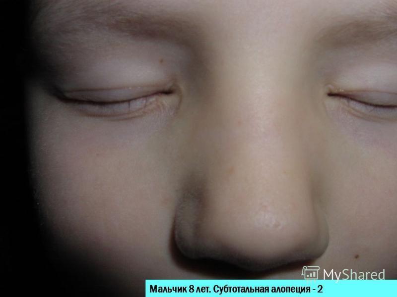 Мальчик 8 лет. Субтотальная алопеция - 2