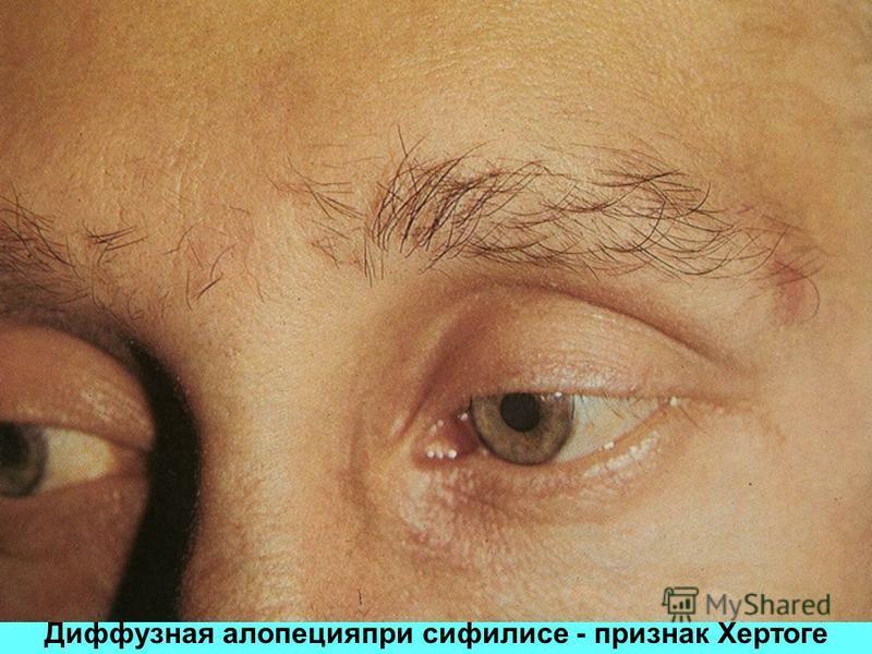 Диффузная алопецияпри сифилисе - признак Хертоге