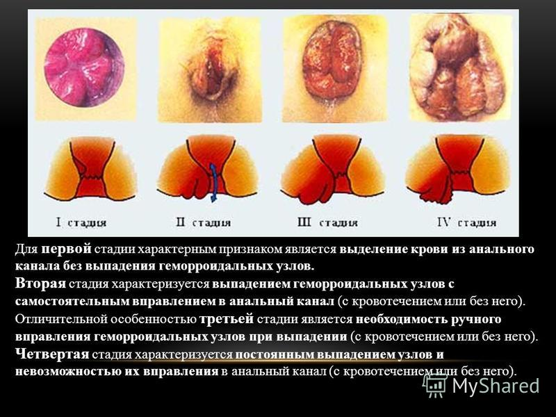Для первой стадии характерным признаком является выделение крови из анального канала без выпадения геморроидальных узлов. Вторая стадия характеризуется выпадением геморроидальных узлов с самостоятельным вправлением в анальный канал (с кровотечением и
