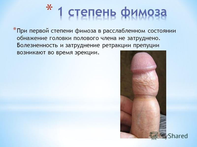 * При первой степени фимоза в расслабленном состоянии обнажение головки полового члена не затруднено. Болезненность и затруднение ретракции препуции возникают во время эрекции.