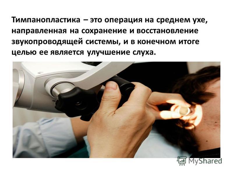 Тимпанопластика – это операция на среднем ухе, направленная на сохранение и восстановление звукопроводящей системы, и в конечном итоге целью ее является улучшение слуха.