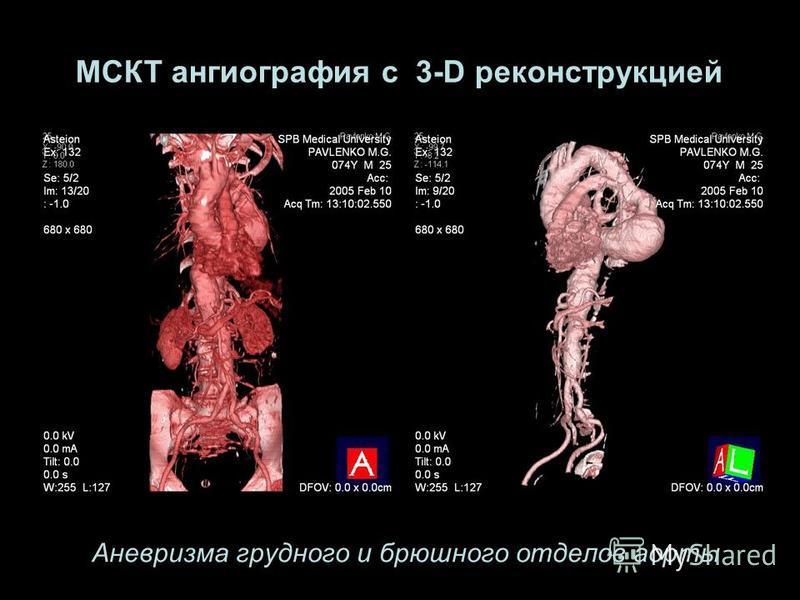 Аневризма грудного и брюшного отделов аорты МСКТ ангиография с 3-D реконструкцией