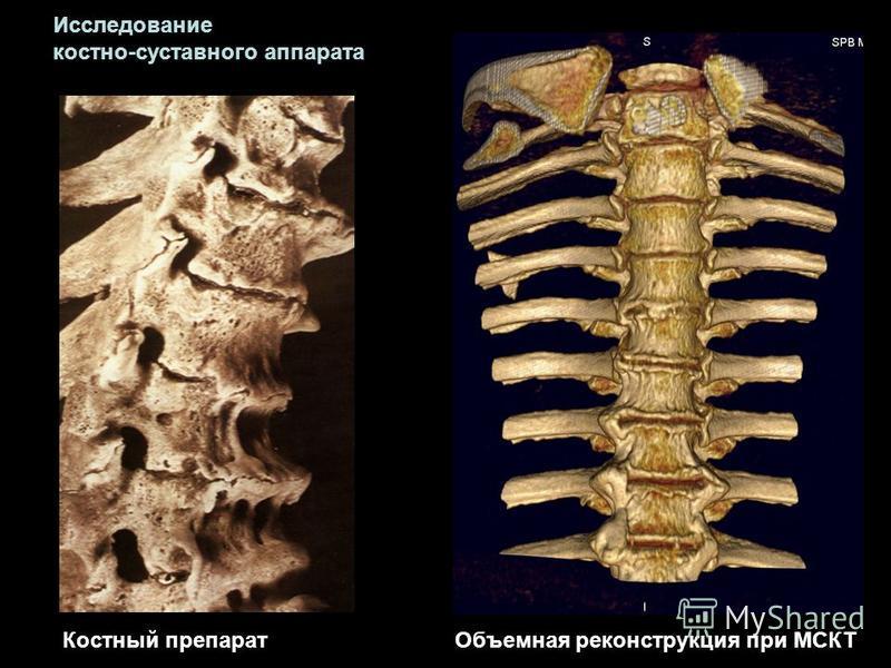 Костный препарат Объемная реконструкция при МСКТ Исследование костно-суставного аппарата
