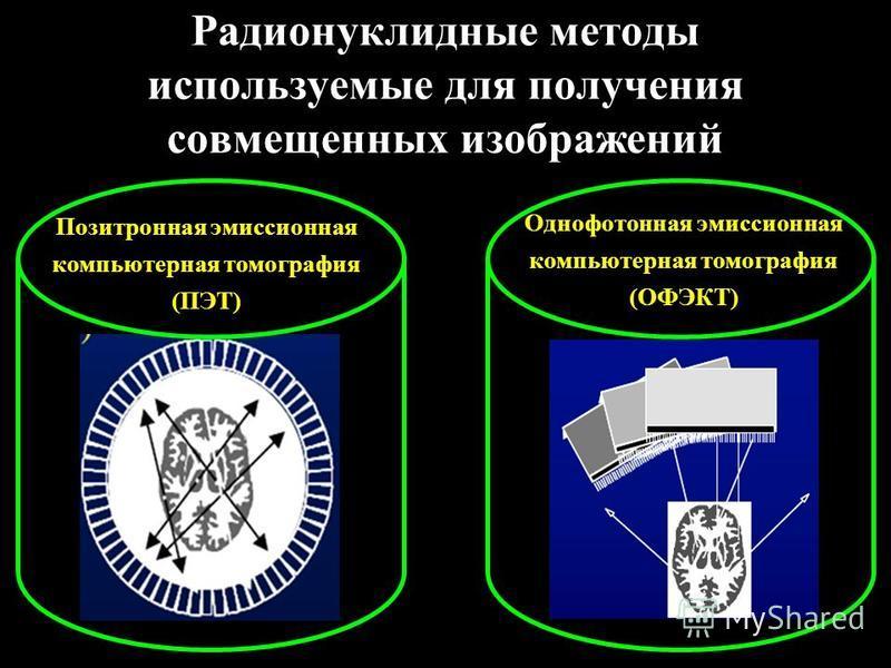 Радионуклидные методы используемые для получения совмещенных изображений Позитронная эмиссионная компьютерная томография (ПЭТ) Однофотонная эмиссионная компьютерная томография (ОФЭКТ)