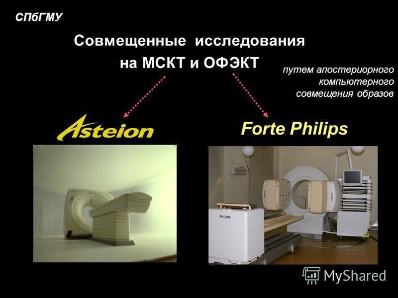 Forte Philips СПбГМУ Совмещенные исследования на МСКТ и ОФЭКТ путем апостериорного компьютерного совмещения образов