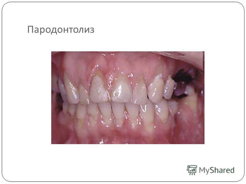 Пародонтолиз