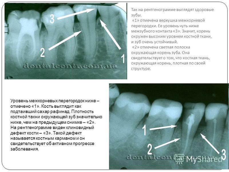 Так на рентгенограмме выглядят здоровые зубы. «1» отмечена верхушка межкорневой перегородки. Ее уровень чуть ниже межзубного контакта «3». Значит, корень окружен высоким уровнем костной ткани, и зуб очень устойчивый. «2» отмечена светлая полоска окру