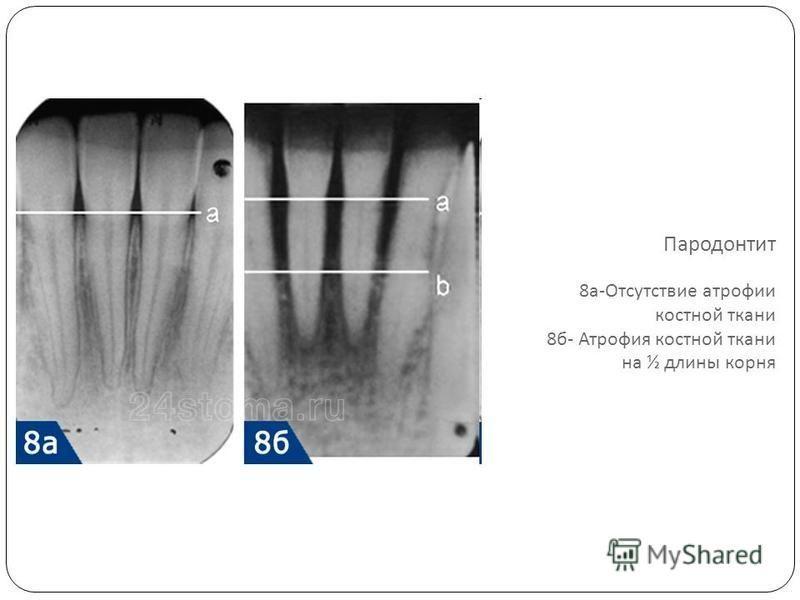 Пародонтит 8 а - Отсутствие атрофии костной ткани 8 б - Атрофия костной ткани на ½ длины корня