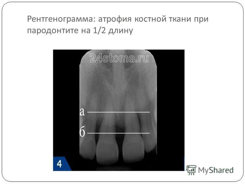 Рентгенограмма : атрофия костной ткани при пародонтите на 1/2 длину