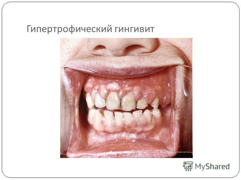 Гипертрофический гингивит