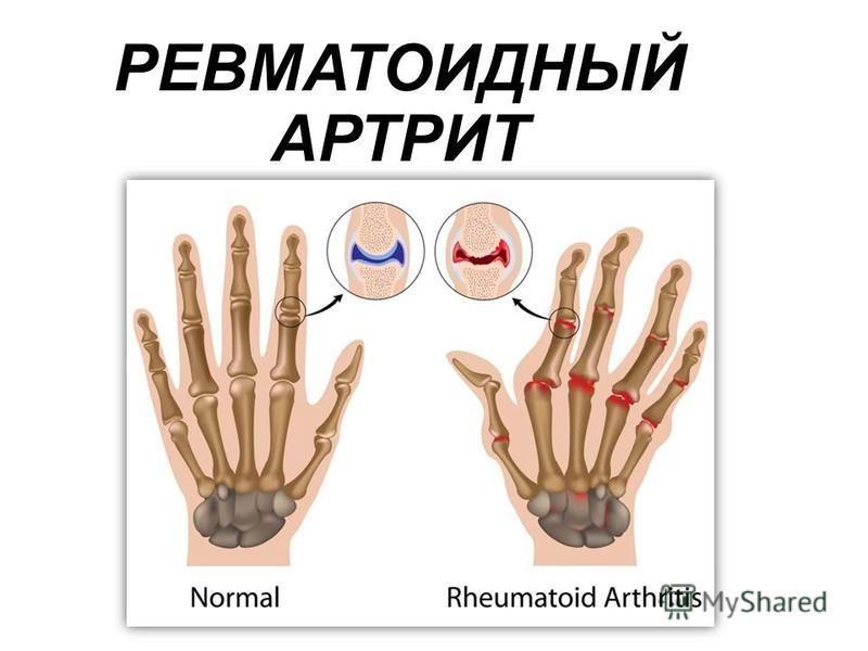 своевременный ответ ревматоидный артрит скачать Идет!