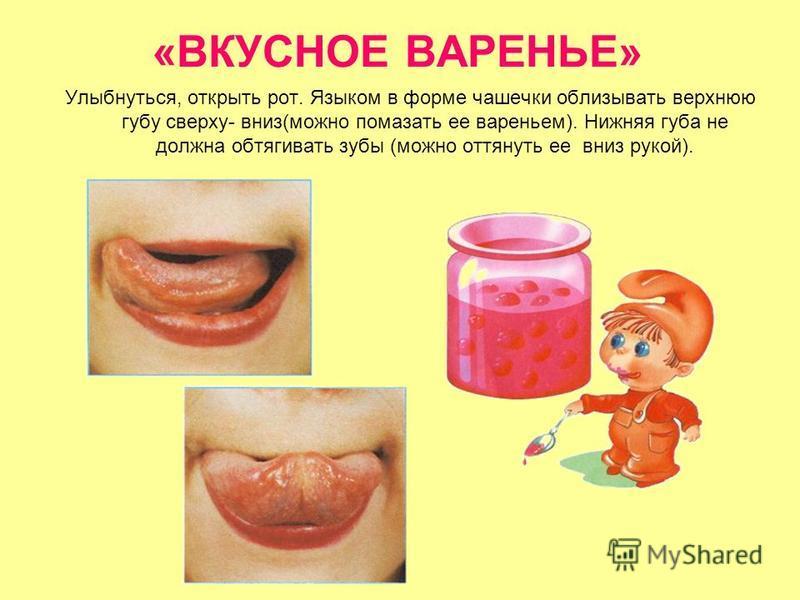 «ВКУСНОЕ ВАРЕНЬЕ» Улыбнуться, открыть рот. Языком в форме чашечки облизывать верхнюю губу сверху- вниз(можно помазать ее вареньем). Нижняя губа не должна обтягивать зубы (можно оттянуть ее вниз рукой).