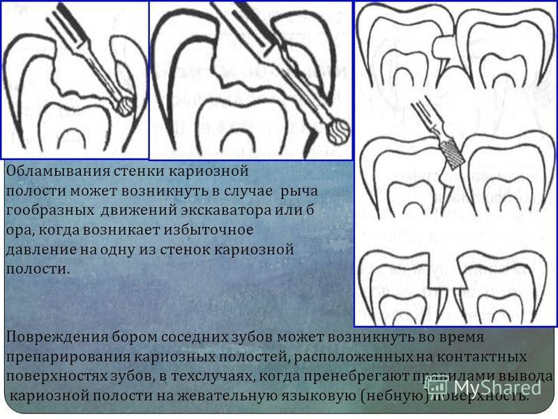 Обламывания стенки кариозной полости может возникнуть в случае рыча г-образных движений экскаватора или б ора, когда возникает избыточное давление на одну из стенок кариозной полости. Повреждения бором соседних зубов может возникнуть во время препари