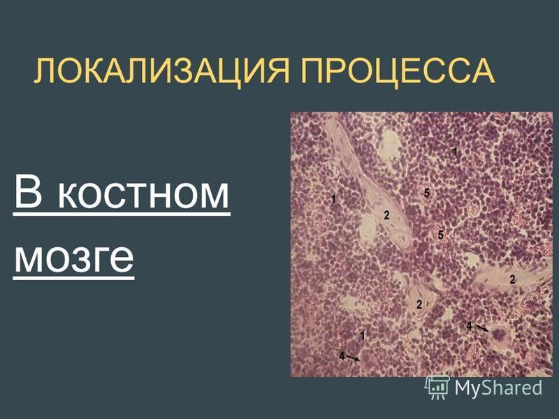 ЛОКАЛИЗАЦИЯ ПРОЦЕССА В костном мозге