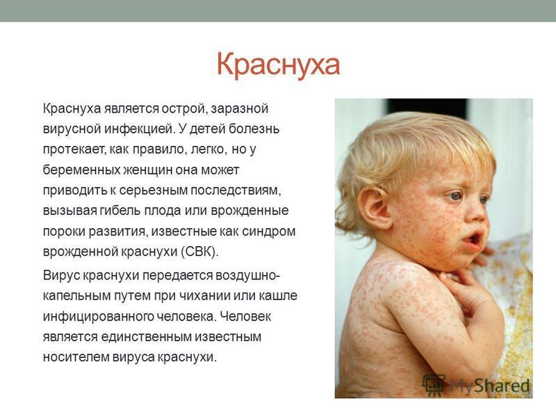 Краснуха Краснуха является острой, заразной вирусной инфекцией. У детей болезнь протекает, как правило, легко, но у беременных женщин она может приводить к серьезным последствиям, вызывая гибель плода или врожденные пороки развития, известные как син