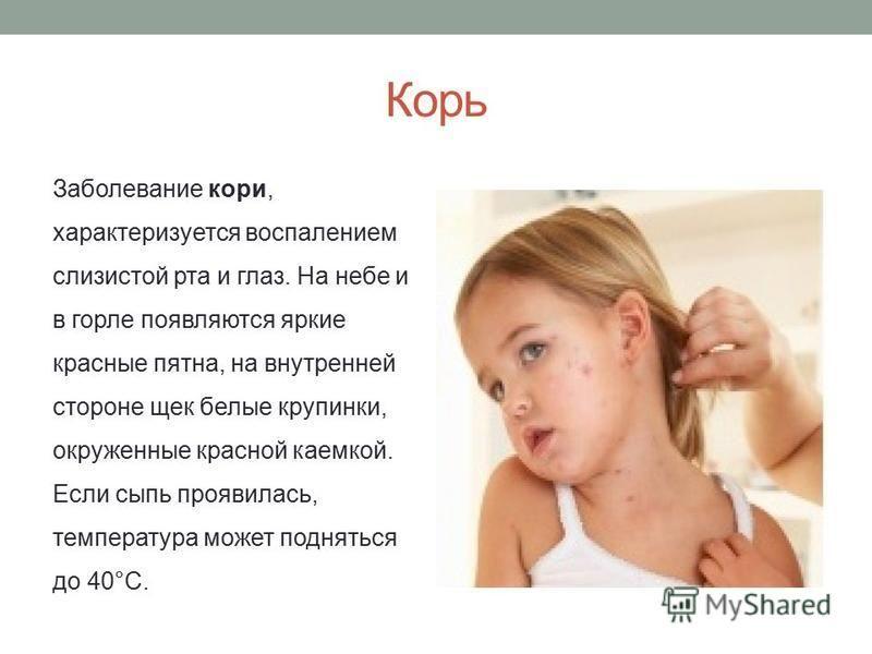 Корь Заболевание кори, характеризуется воспалением слизистой рта и глаз. На небе и в горле появляются яркие красные пятна, на внутренней стороне щек белые крупинки, окруженные красной каемкой. Если сыпь проявилась, температура может подняться до 40°С