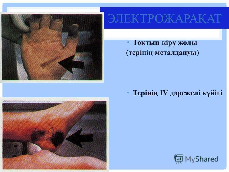 ЭЛЕКТРОЖАРАҚАТ Токтың кіру жолы (терінің металдануы) Терінің IV дәрежелі күйігі