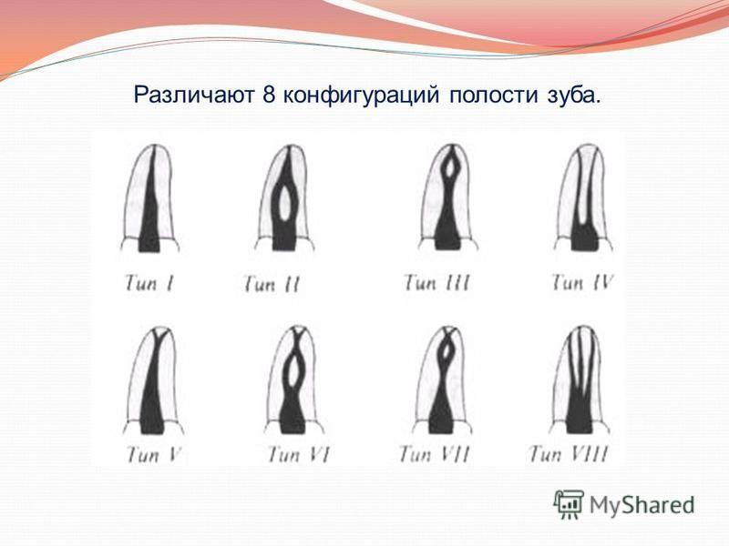Различают 8 конфигураций полости зуба.