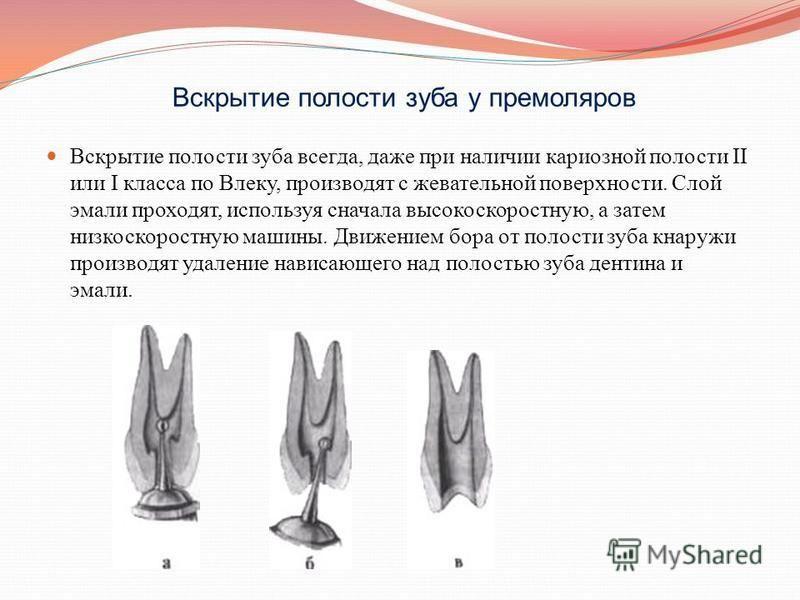Вскрытие полости зуба у премоляров Вскрытие полости зуба всегда, даже при наличии кариозной полости II или I класса по Влеку, производят с жевательной поверхности. Слой эмали проходят, используя сначала высокоскоростную, а затем низкоскоростную машин