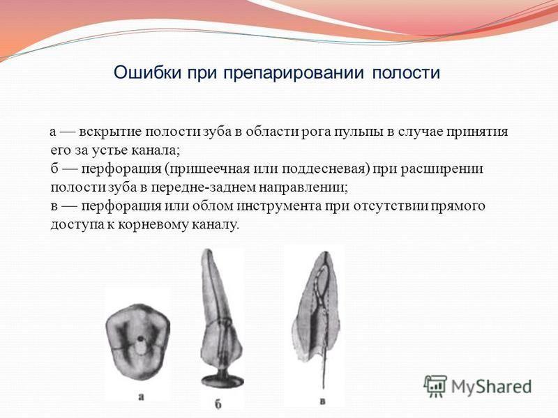 Ошибки при препарировании полости а вскрытие полости зуба в области рога пульпы в случае принятия его за устье канала; б перфорация (пришеечная или поддесневая) при расширении полости зуба в передне-заднем направлении; в перфорация или облом инструме