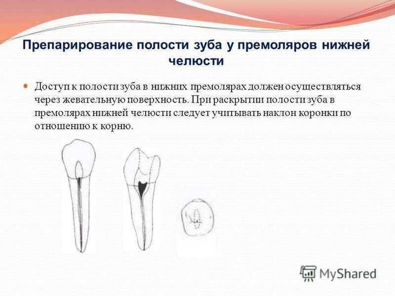 Препарирование полости зуба у премоляров нижней челюсти Доступ к полости зуба в нижних премолярах должен осуществляться через жевательную поверхность. При раскрытии полости зуба в премолярах нижней челюсти следует учитывать наклон коронки по отношени