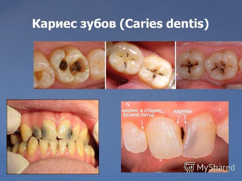 Кариес зубов (Caries dentis)