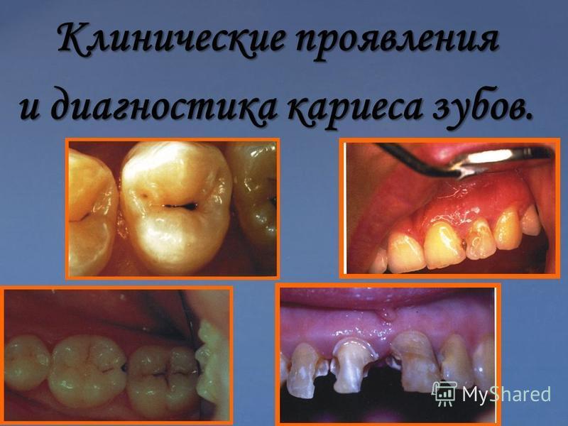 Клинические проявления и диагностика кариеса зубов.