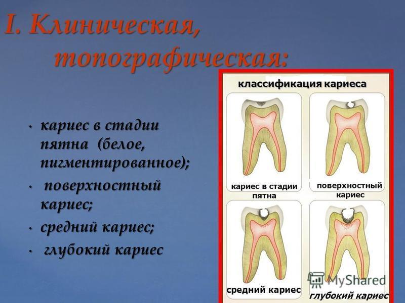 І. Клиническая, топографическая: кариес в стадии пятна (белое, пигментированное); кариес в стадии пятна (белое, пигментированное); поверхностный кариес; поверхностный кариес; средний кариес; средний кариес; глубокий кариес глубокий кариес кариес в ст