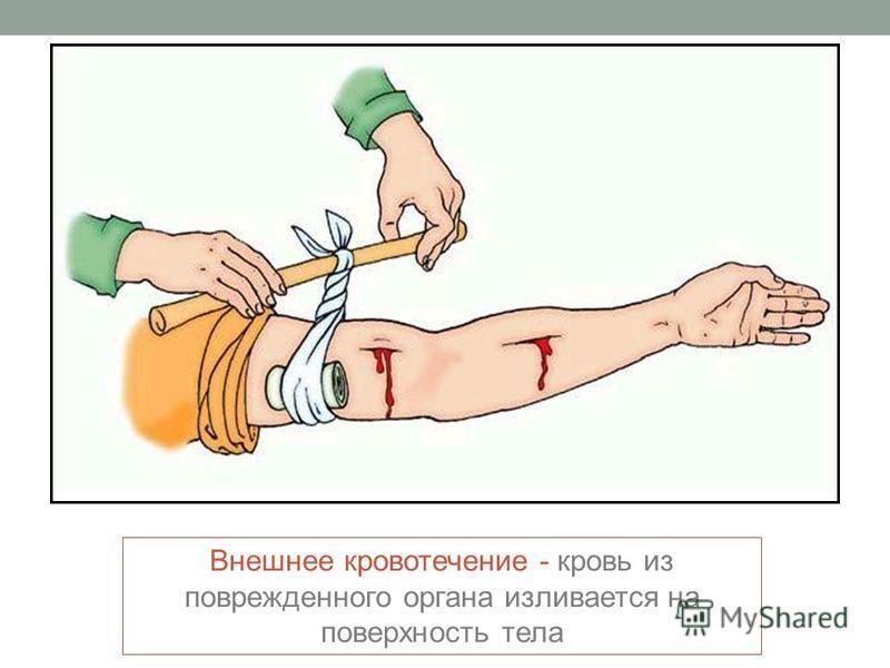Внешнее кровотечение - кровь из поврежденного органа изливается на поверхность тела