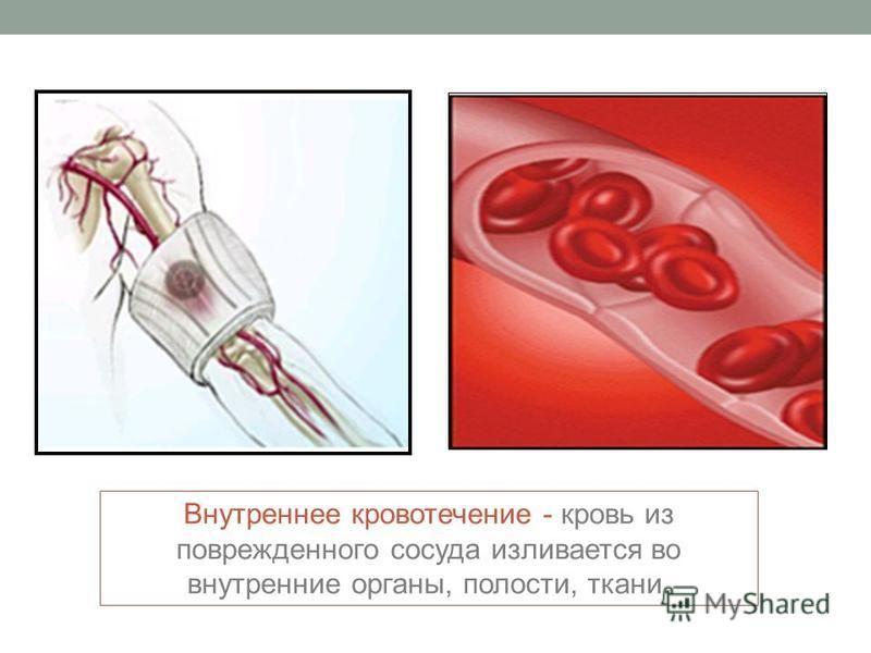 Внутреннее кровотечение - кровь из поврежденного сосуда изливается во внутренние органы, полости, ткани.