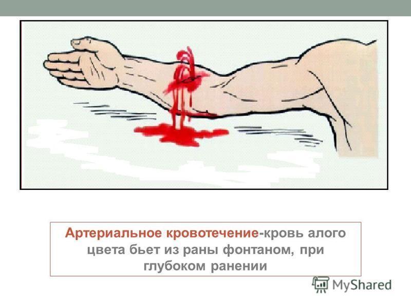 Артериальное кровотечение-кровь алого цвета бьет из раны фонтаном, при глубоком ранении